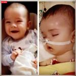 Szymon - ofiara szczepionki przeciw pneumokokom